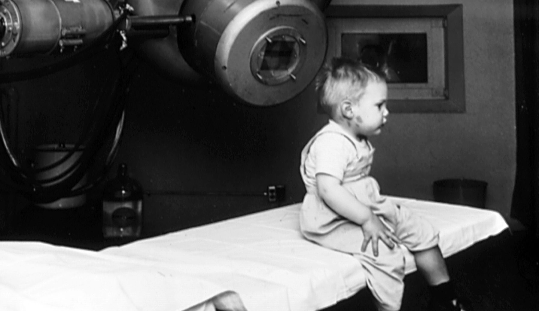 Американский мальчик Гордон Айзекс был первым человеком, которого лечили при помощи линейного ускорителя. Это было в 1953 году. Фото: Национальный институт изучения рака, США.